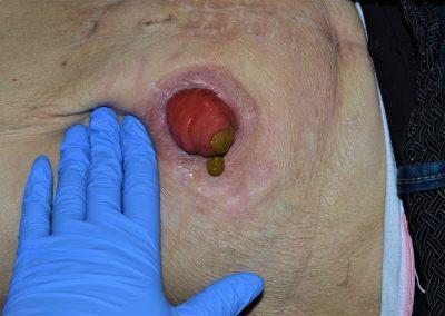 Ileostomia