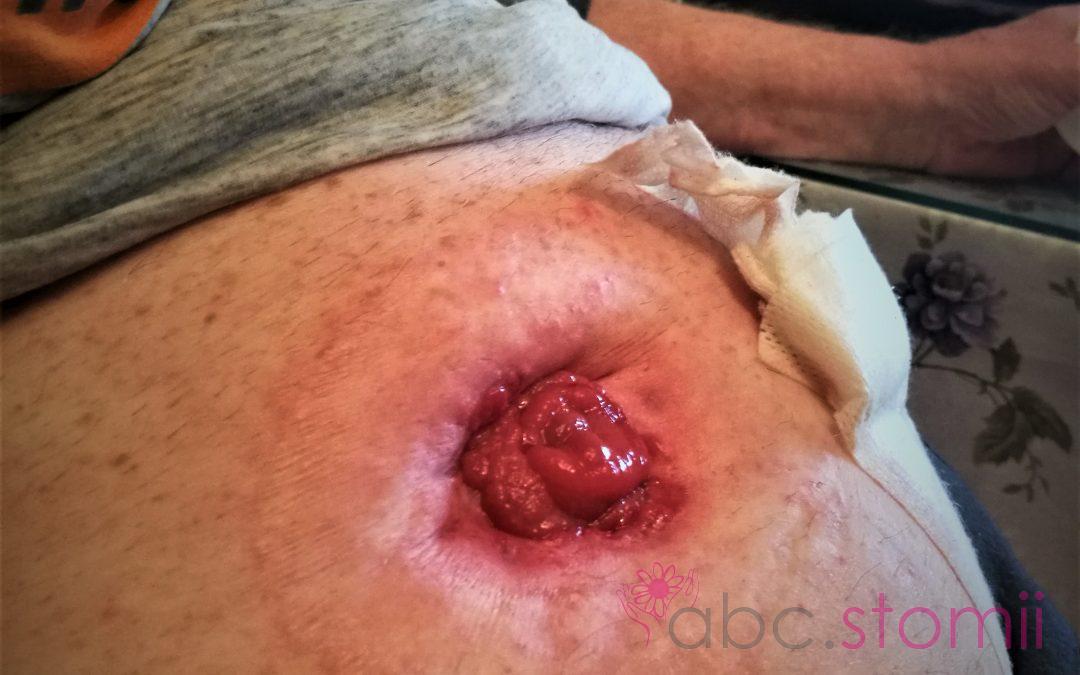 Czego może/powinien oczekiwać stomik przy wypisie ze szpitala, po operacji wyłonienia stomii?