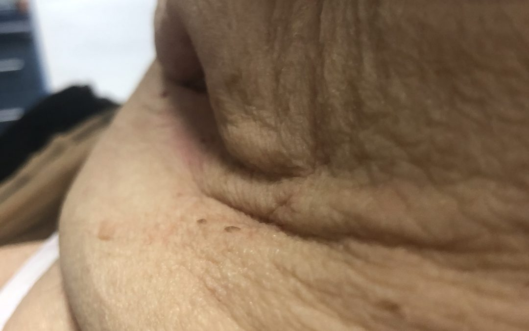 Kiedy treść ze stomii podpływa pod przylepiec – stomia w fałdzie skórnym.